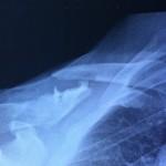 2012-06-17 röntgen från akuten